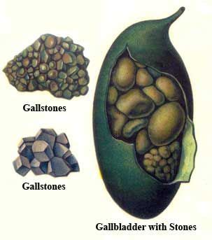 Liver Gallbladder Detox by 25 Best Ideas About Liver And Gallbladder Cleanse On