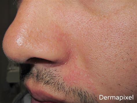 tengo costras en el cuero cabelludo dermapixel dermatitis seborreica no es piel seca