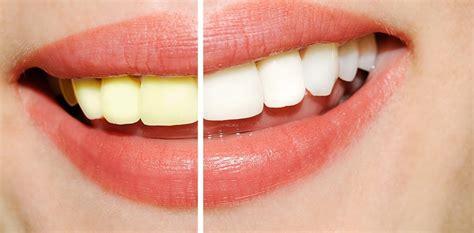 smile los algodones dentists guide