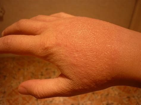 fungal skin infection yeast infection on skin images