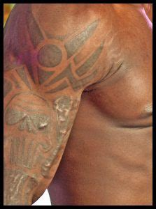 tattoo keloid risk laser tattoo treatments dr greg hall