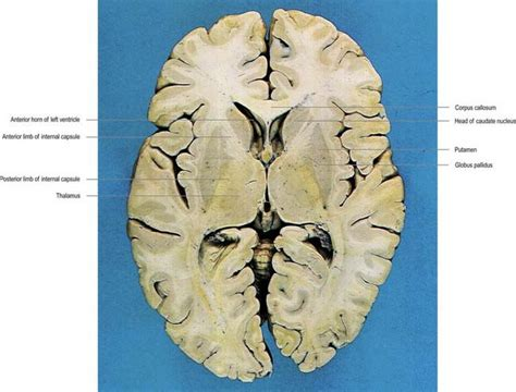 horizontal section of brain basal ganglia neupsy key