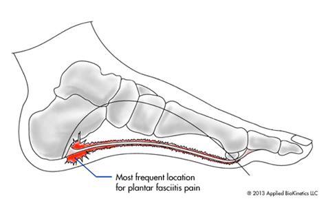 plantar fasciitis diagram what is plantar fasciitis understanding heel