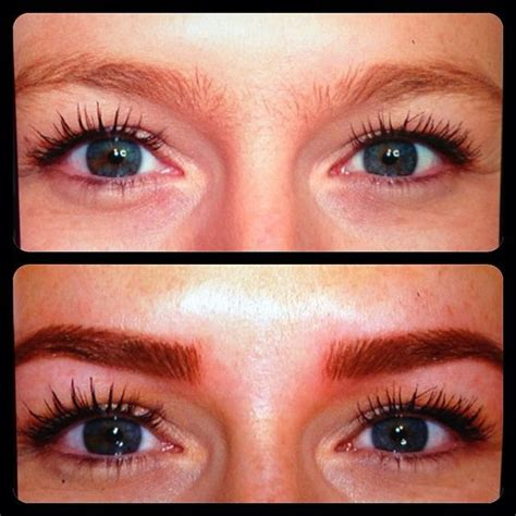 eyebrow tattoo removal before and after laser eyebrow removal before and after tattoos
