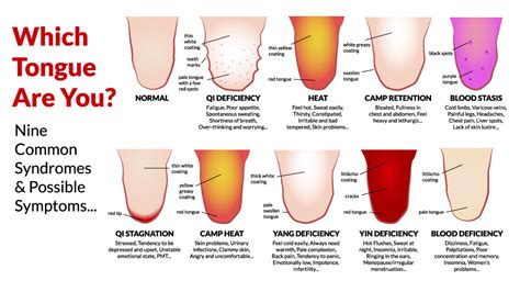 tongue color chart 7 secret things your tongue is trying to tell you