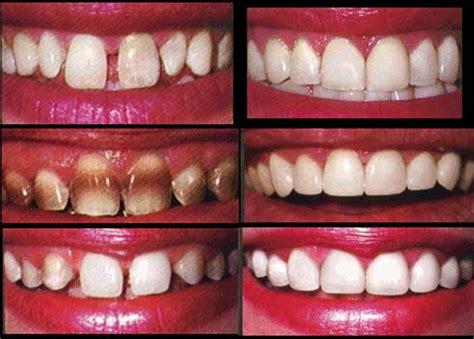 Biaya Pemutihan Gigi Di Dokter merapikan gigi secara instan dentia dental care center