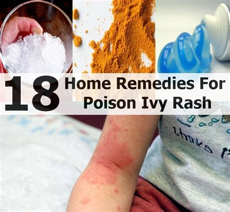 top 18 home remedies for poison rash diy home