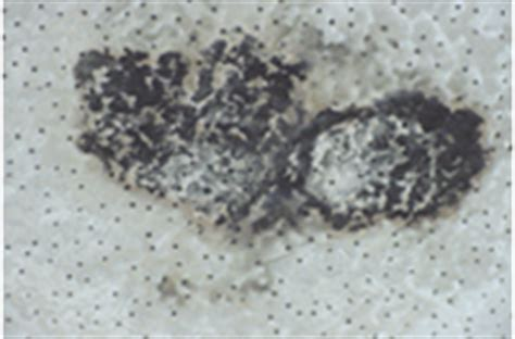 Mold On Ceiling Tiles by Cdc Indoor Environmental Quality Dness And Mold In