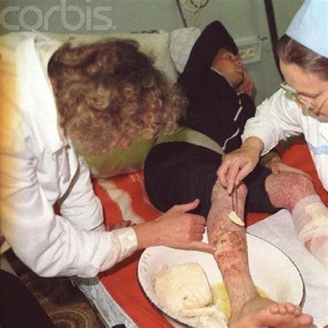 imagenes fuertes para adultos chernobyl en 1986 las v 237 ctimas fotos muy fuertes dogguie