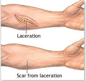 multiple c sections scar tissue 25 best ideas about muscle adhesions on pinterest shin