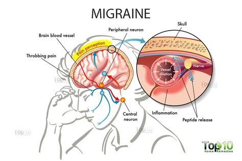 Migraines Allergies And Work by Home Remedies For Migraines Top 10 Home Remedies