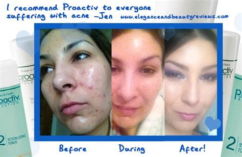 proactiv dark spot corrector before and after proactiv revitalizing toner acne skin care elegance