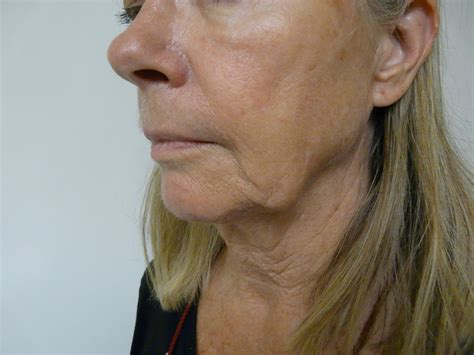 women with sagging jaws pics what are jowls causes prevention how to get rid of them