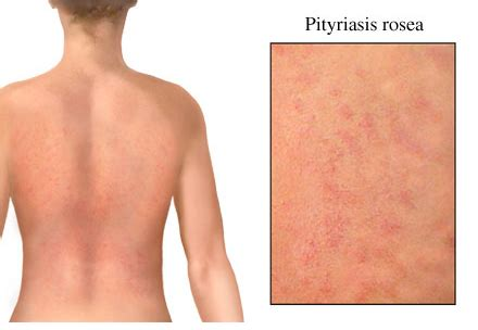 christmas tree rash picture tree rash causes treatment home remedies pictures and homeopathic remedies