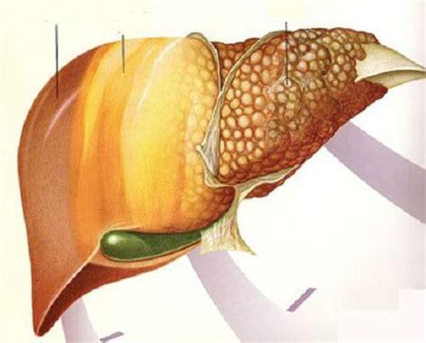 alimentazione fegato grasso 6 alimenti per combattere il fegato grasso vivere pi 249 sani