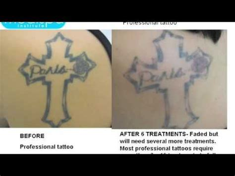 laser tattoo removal before and after photos youtube