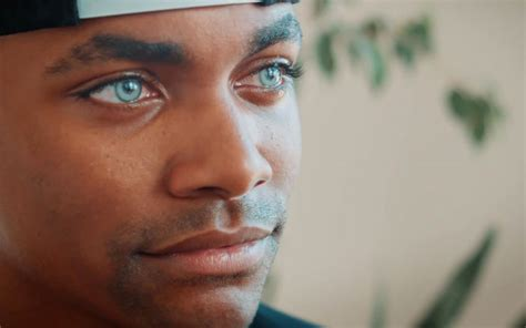 khalil underwood testimonies change eye color iris implant eye surgery