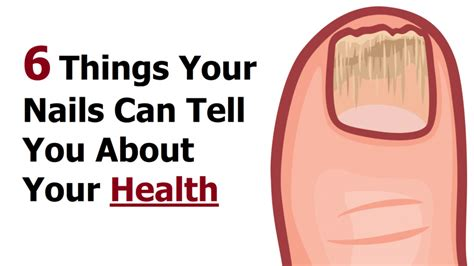 11 things your nails are trying to tell you about your health 6 things your nails can tell you about your health true feed