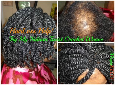 i need to set my braids for office 1000 images about alopecia hairstyles on pinterest