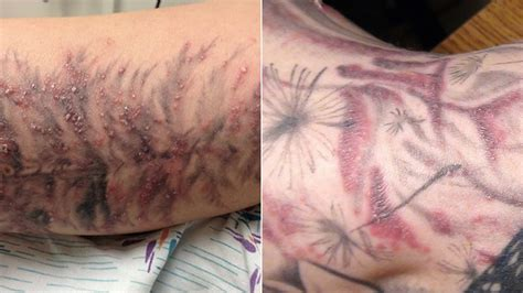 red bubbly rashes will make your dumb tattoos even dumber