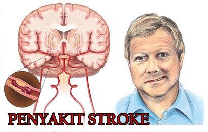 gejala penyebab penyakit stroke dan cara penyembuhan gejala stroke ringan