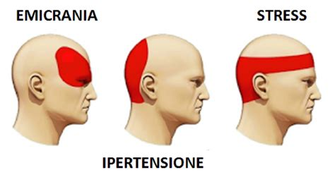medicinali per il mal di testa eliminare il mal di testa in 5 minuti senza ricorrere ai