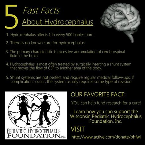 5 Facts About Hydrocephalus