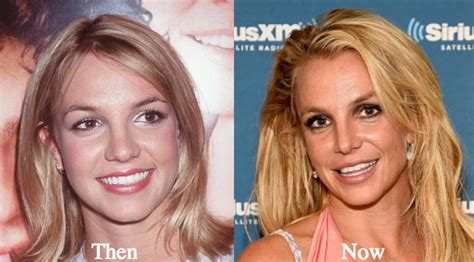 Britneys To Toe Plastic Surgery base talk before after surgery injections