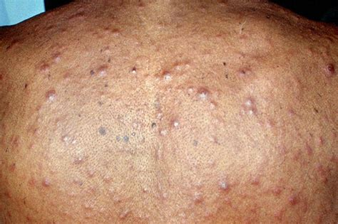 can dogs get hiv pictures of scabies rash pictures of scabies breeds picture