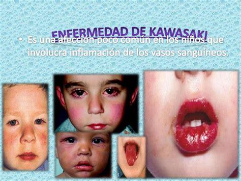 imagenes enfermedad kawasaki niños enfermedad de kawasaki power point 2