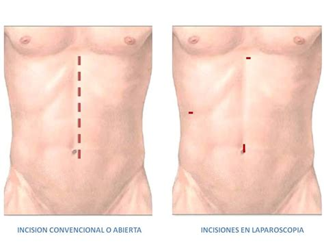 vertical incision c section abdominal surgery abdominal surgery vertical incision