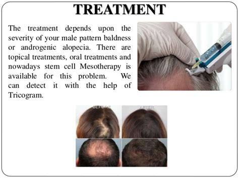 a cure for all disease except death baldness and hair loss androgenic alopecia treatment pictures photos