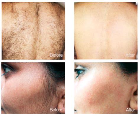 laser hair removal in homestead fl om hair