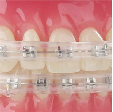 comfort cover comfort cover for dental braces