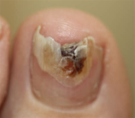 nail infection fungal nail infections