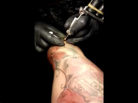 laser tattoo removal puerto rico taino