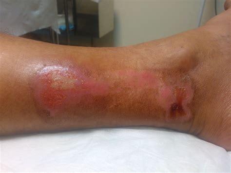 imagenes de uñas quemadas testimonios de curaci 243 n de quemaduras con agua de mar de