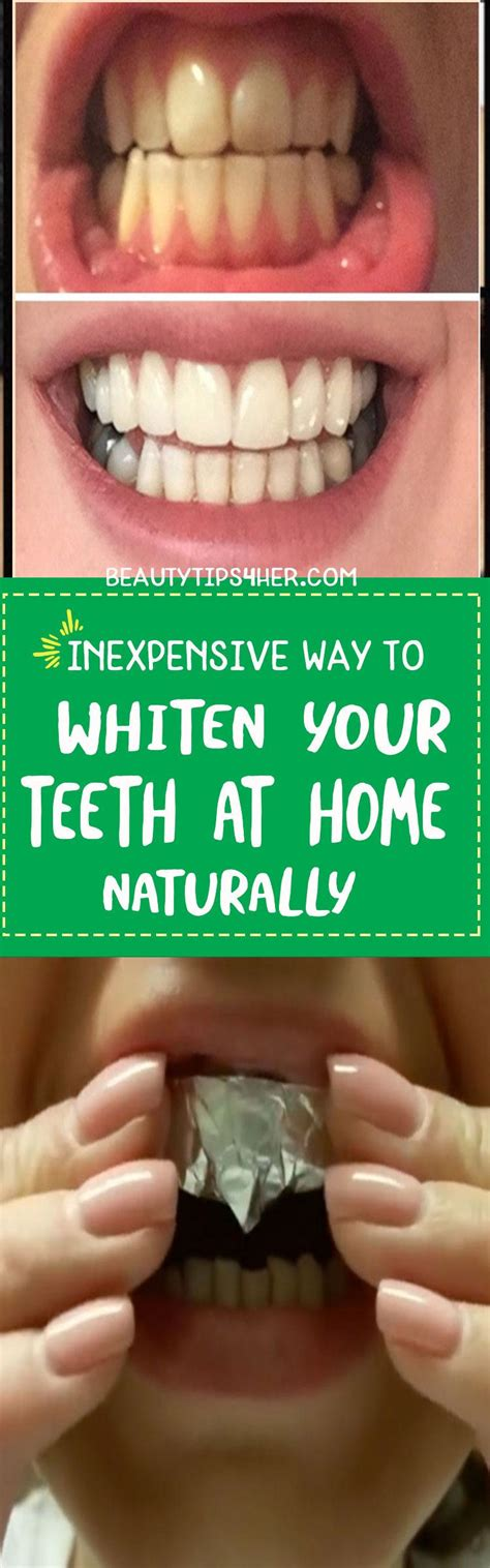 how to make teeth whitening paste at home