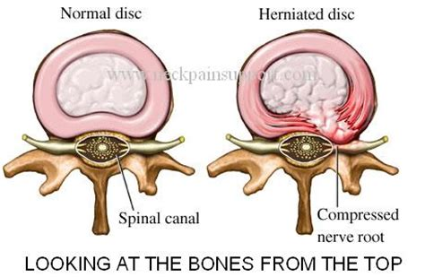 herniated disc diagram neck support severe neck with numbess and