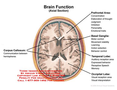 axial section of brain medical exhibits demonstrative aids illustrations and models