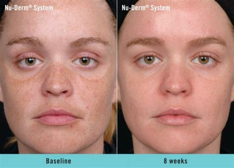 Roc Repairing Lip Care 4 9g wrinkle removal boston plastic surgery specialists