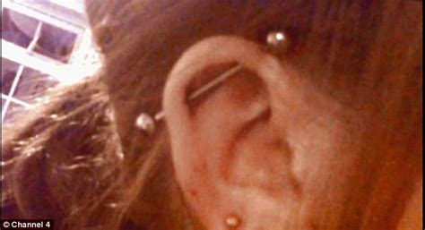 top ear bar graduate is left with lumps after having her ear pierced
