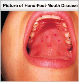 hand foot and mouth on roof of mouth physicians assistant for healthy everytime everyday and