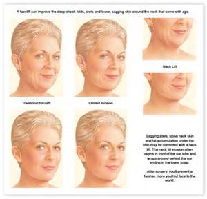 what to do for sagging jowls short hairstyle 2013