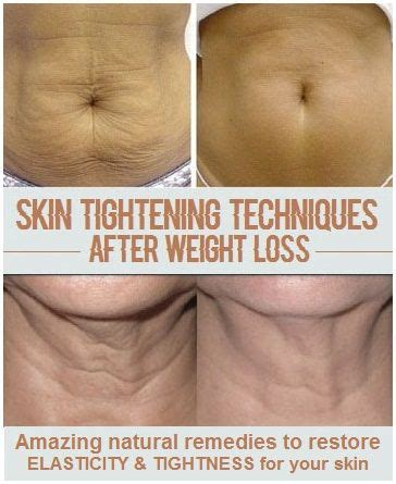 how to tighten loose skin on stomach after c section the 25 best loose skin surgery ideas on pinterest