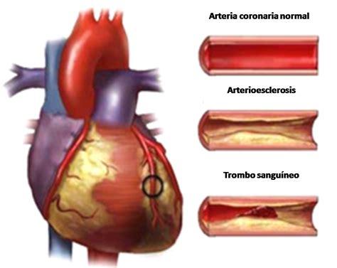 Is Jantung penyakit jantung koroner serta bagaimana cara mengatasinya