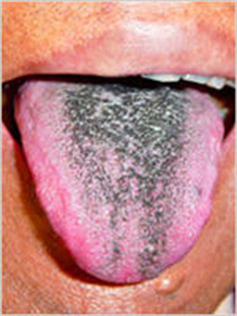 black spot on s tongue spot on tongue