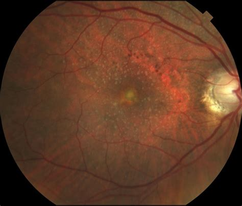 pattern dystrophy prognosis adult vitelliform macular dystrophy the retina reference