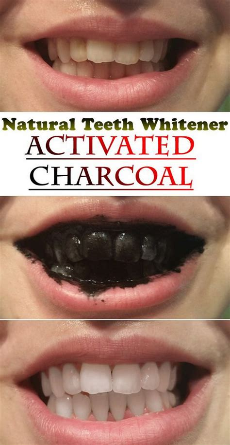 natural ways  whiten  teeth homemade teeth
