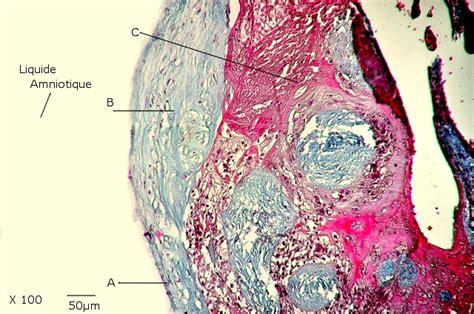Placenta Histologie Femme Anatomie Pathologie Humaine